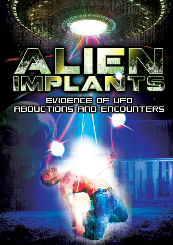 Alien Implants: Evidence Of UFO Abductions And Encounters-0